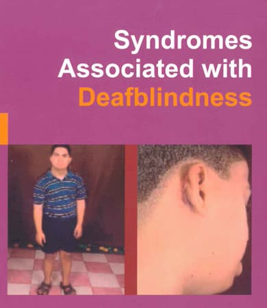 Cover page of Syndromes Associated with Deafblindness